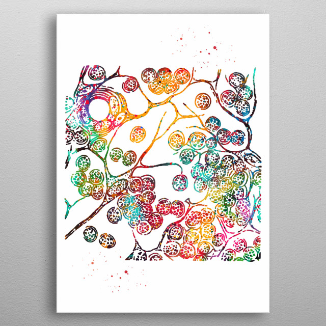 Cell sarcoma of a lymphatic gland, lymphatic gland, Medical art, Cell sarcoma, watercolor Cell sarcoma, lymphatic gland print metal poster