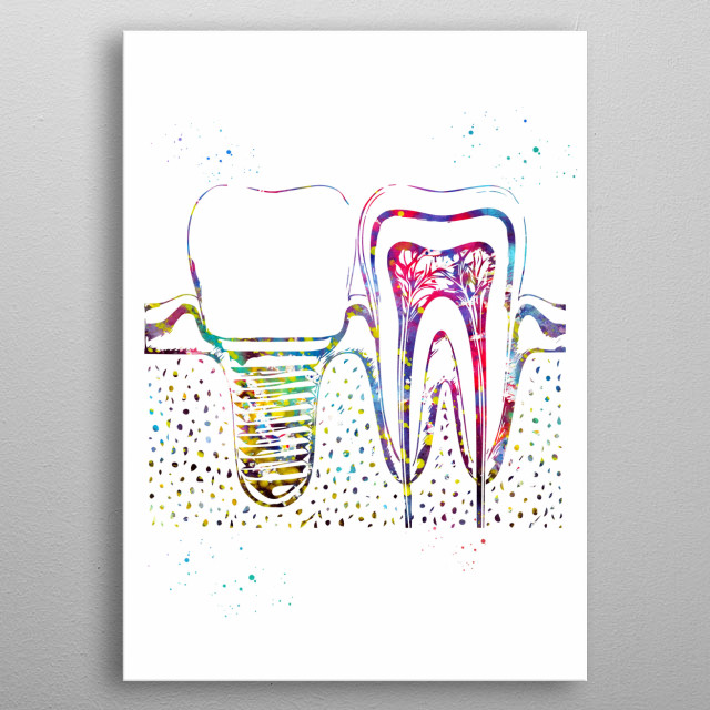 Human teeth and dental implant, watercolor, medical art, science poster, wall decor metal poster