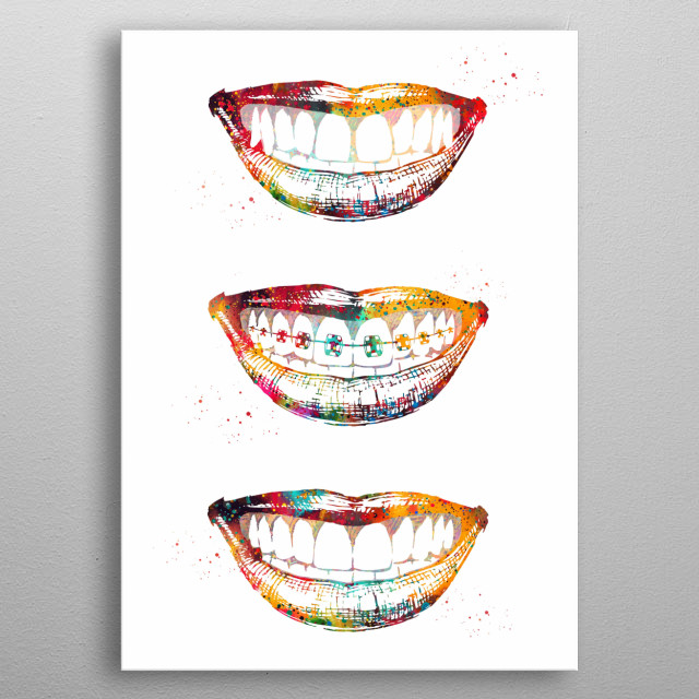 Before, with and after braces, teeth correction, dental anatomy, dental print, medical art, dental hygienist gift, dentist office decor metal poster