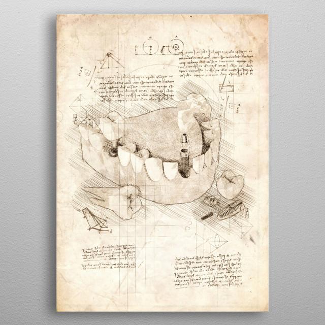 Sketch of a Human Dental Implant Procedure metal poster